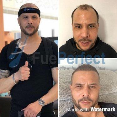 Haartransplantatie Turkije Hoofddorp